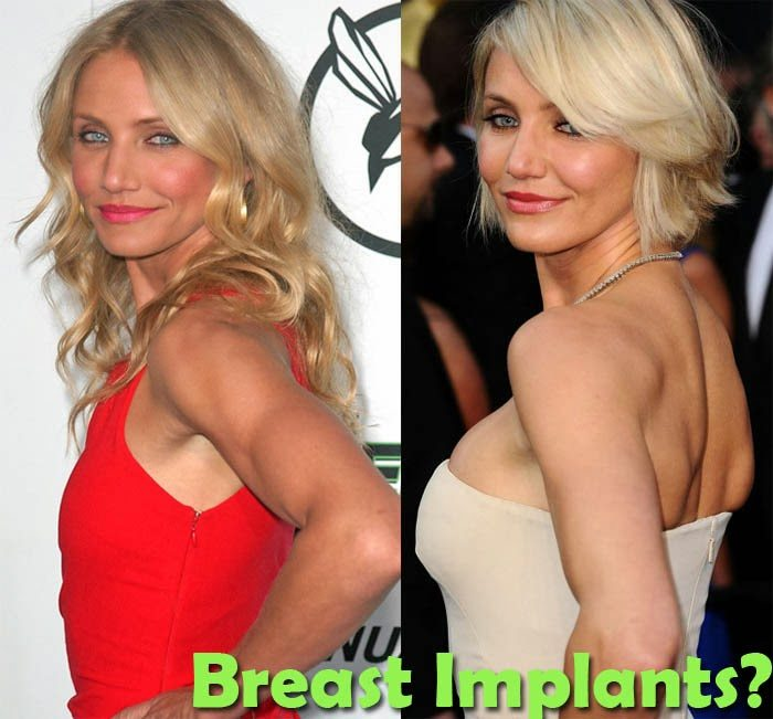 Breast Enhancement Surgery in Berkeley